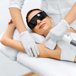 epilazione laser | rimozione peli | rimozione peli definitiva | sun lovers group