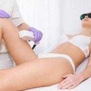 laser donna | epilazione donna | padova | venezia