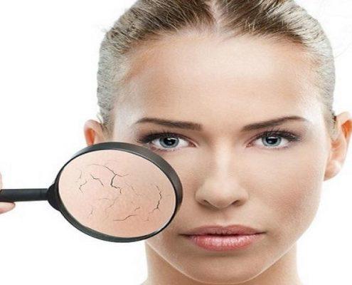 pelle grassa | trattamenti viso | bellezza | padova | venezia